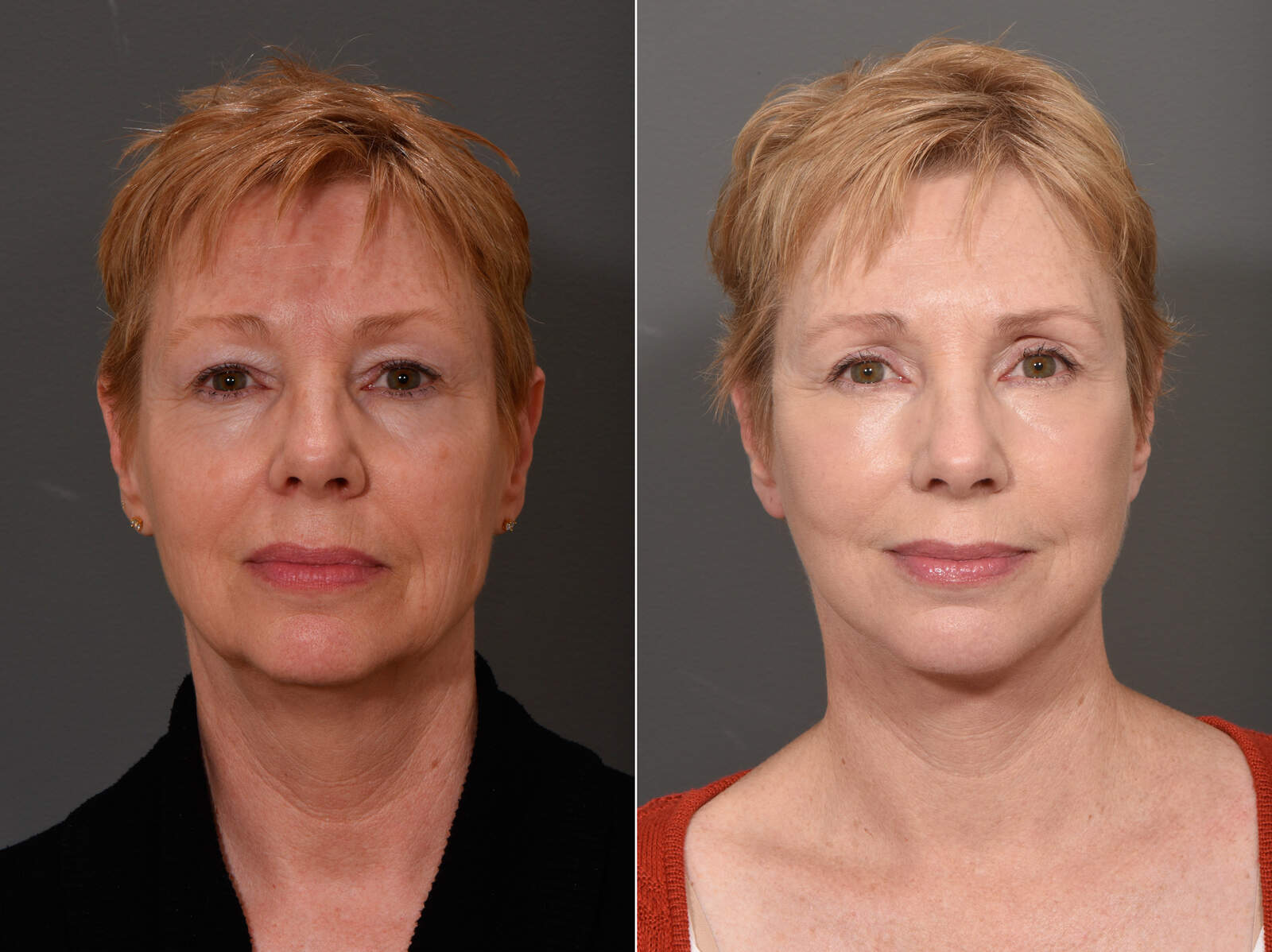 Before and After Photos in , , Facelift