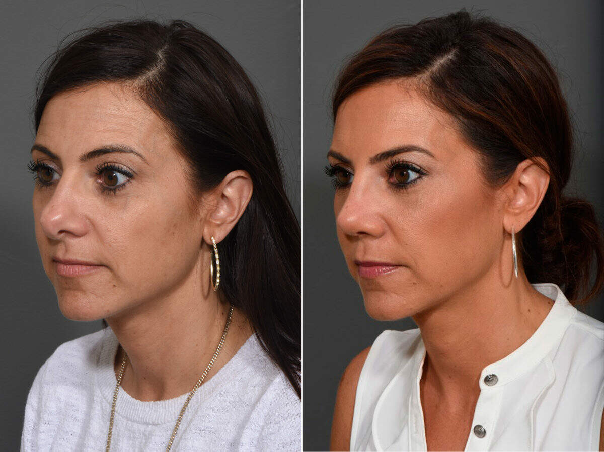 Rhinoplasty Before and After Photos in Lexington, KY, Patient 12362
