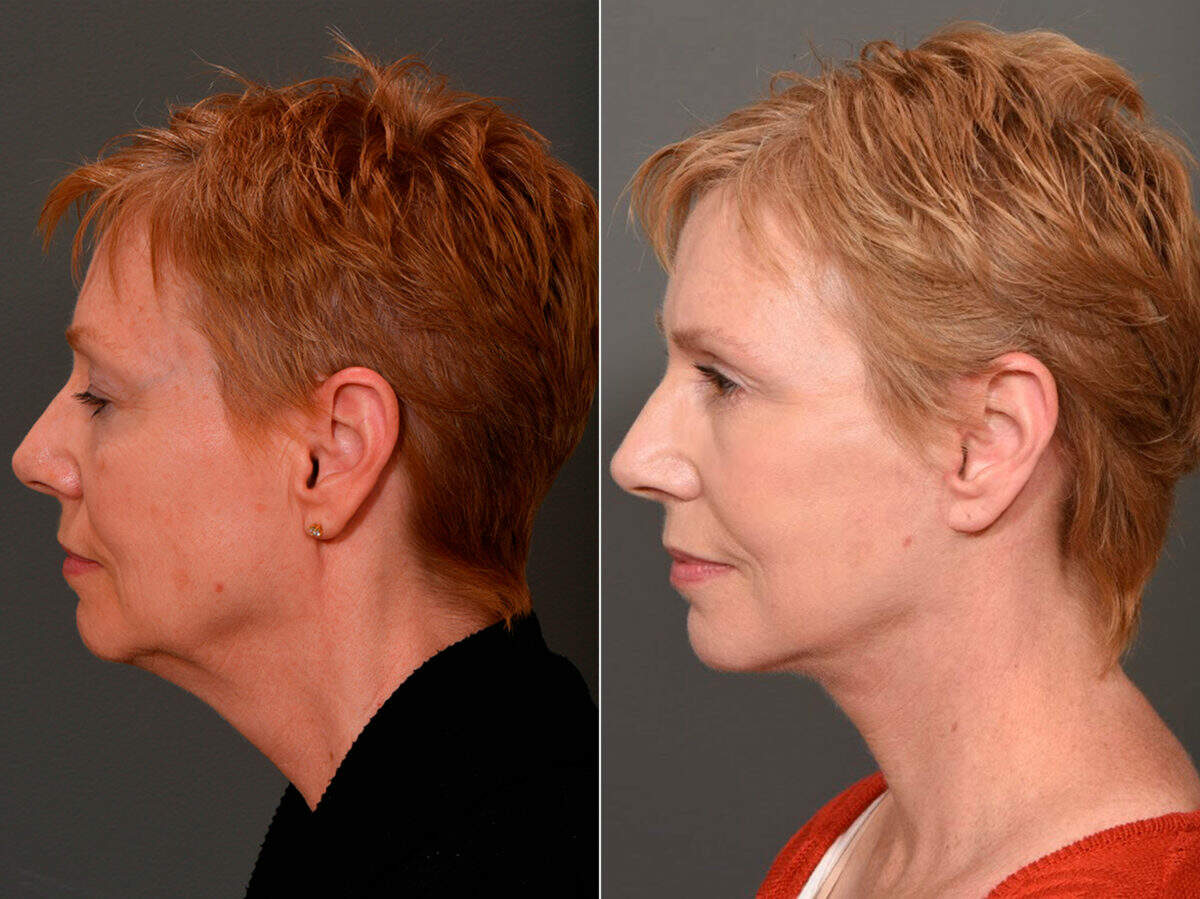 Facelift Before and After Photos in Lexington, KY, Patient 12368