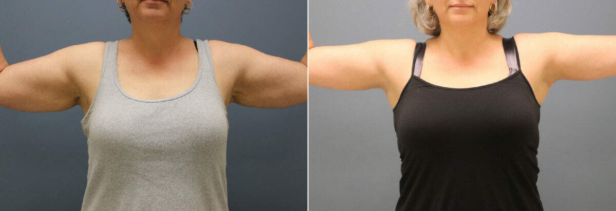 Arm Lift Before and After Photos in Lexington, KY, Patient 12515