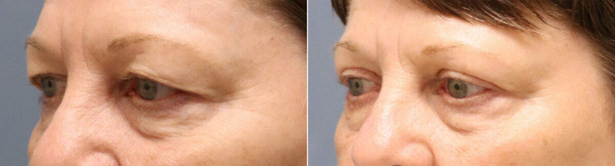 Upper & Lower Blepharoplasty Before and After Photos in Lexington, KY, Patient 12590