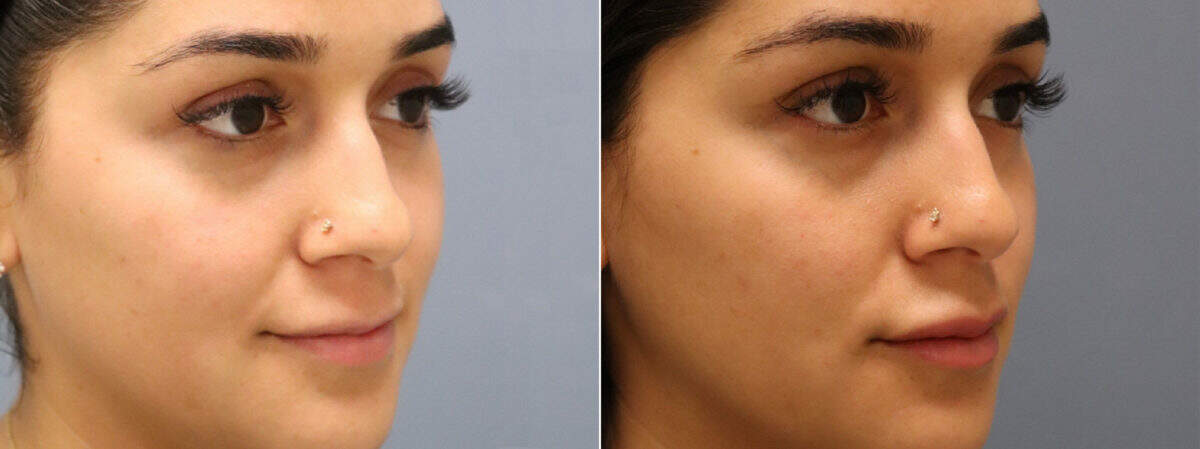 Injectable Fillers Before and After Photos in Lexington, KY, Patient 12464