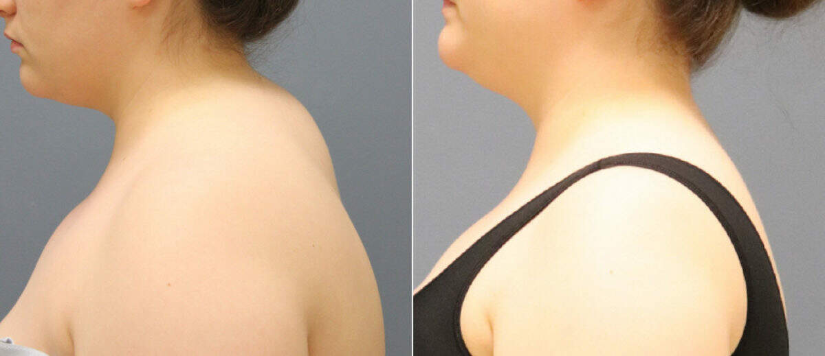 Liposuction Before and After Photos in Lexington, KY, Patient 12685