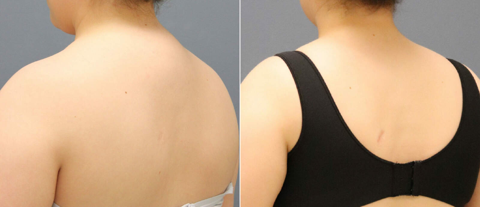 Before and After Photos in , , Liposuction in Lexington, KY