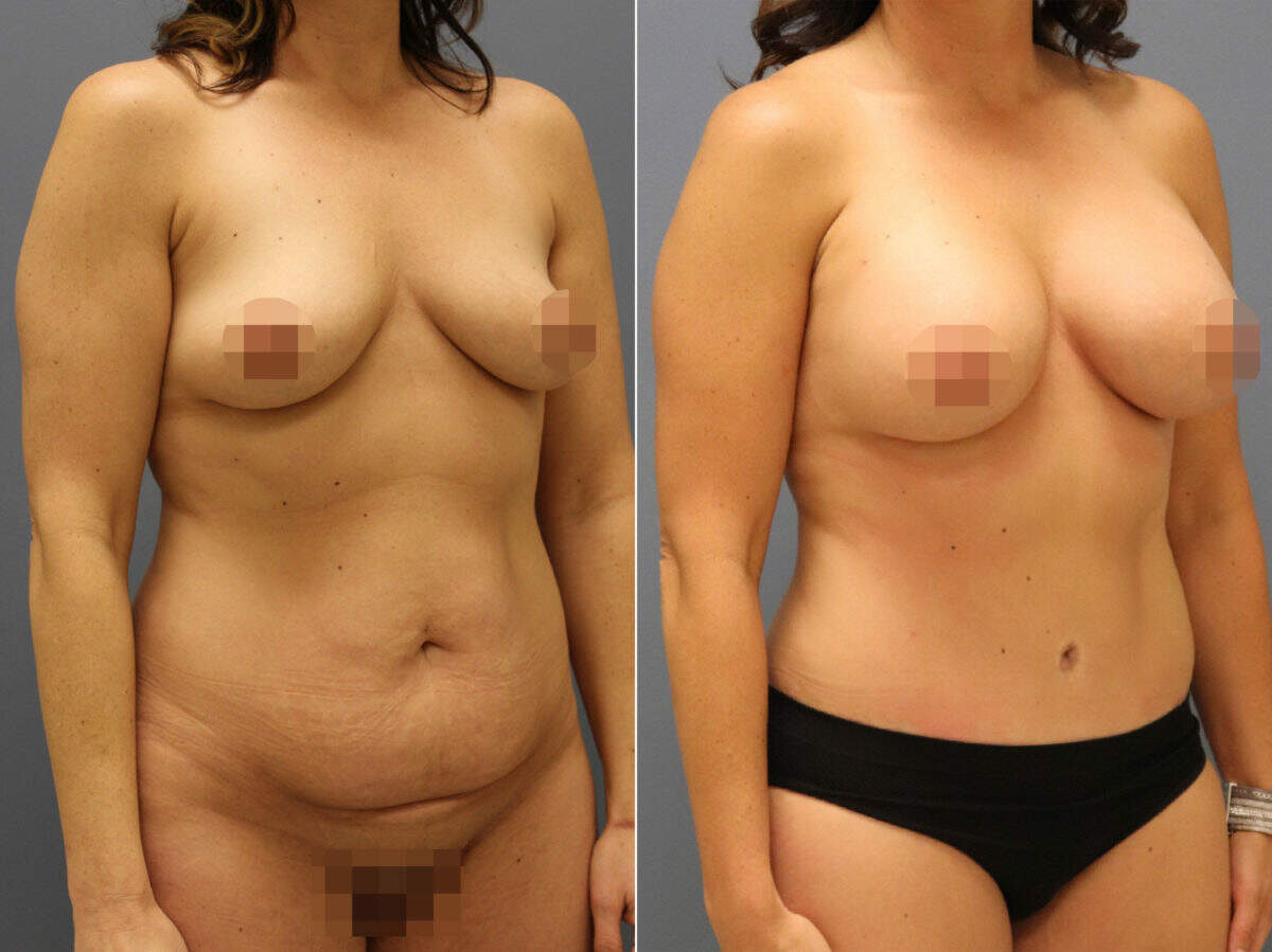 Tummy Tuck Before and After Photos in Lexington, KY, Patient 12624