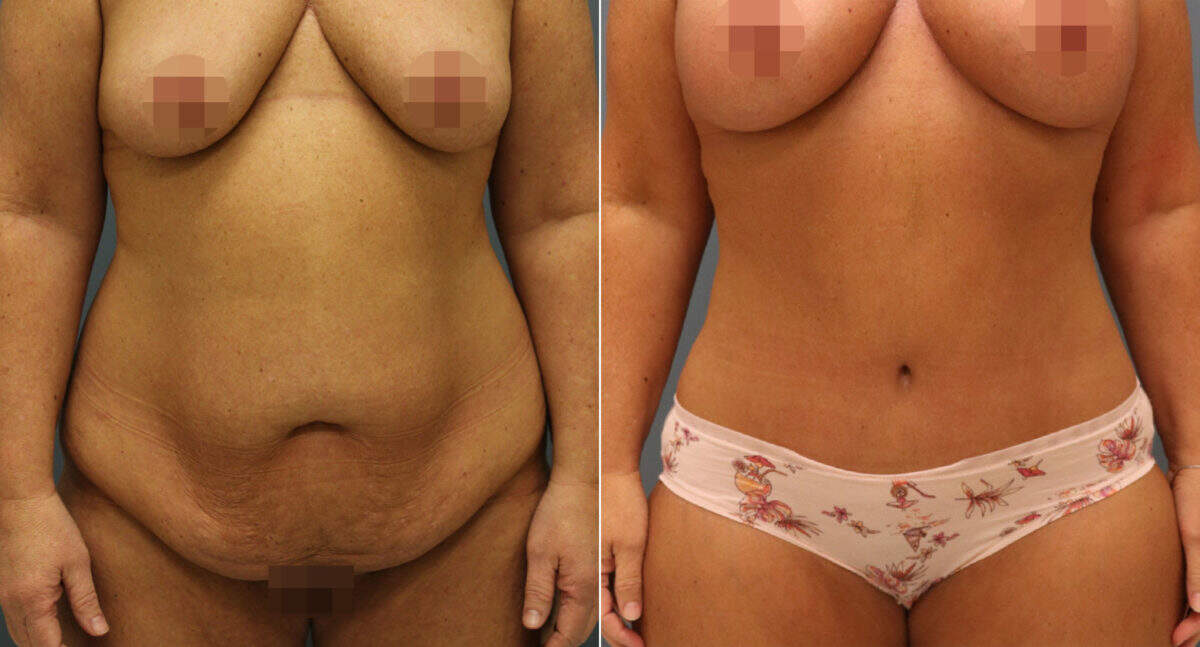 Tummy Tuck Before and After Photos in Lexington, KY, Patient 12644
