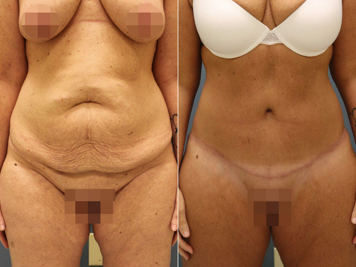 Tummy Tuck Before and After Photos in Lexington, KY, Patient 12674