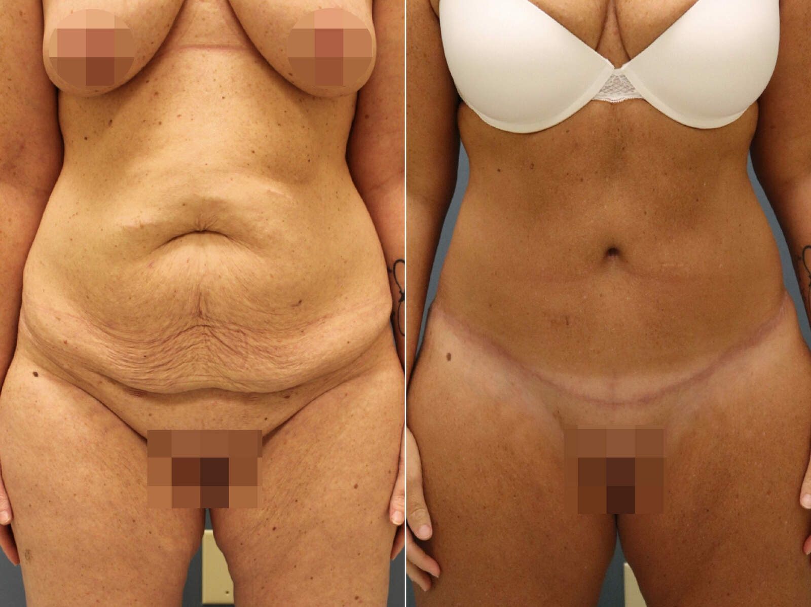 Before and After Photos in , , Tummy Tuck