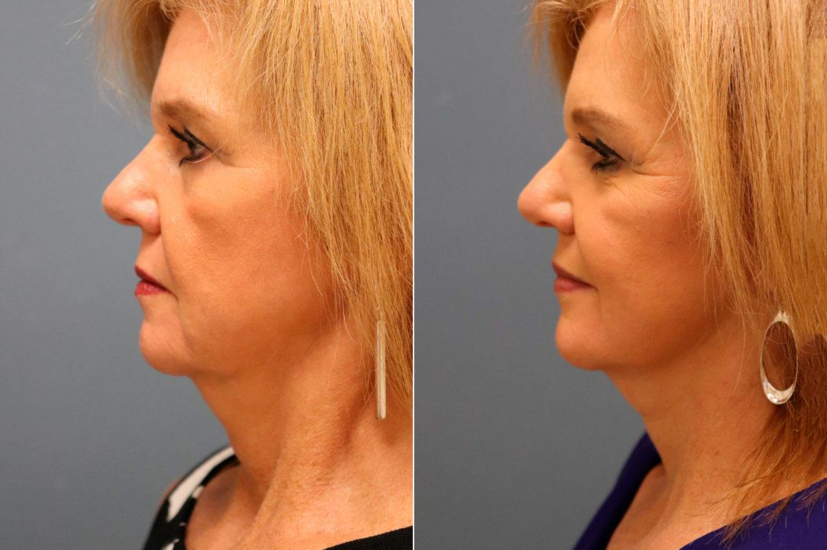 Facelift Before and After Photos in Lexington, KY, Patient 13116
