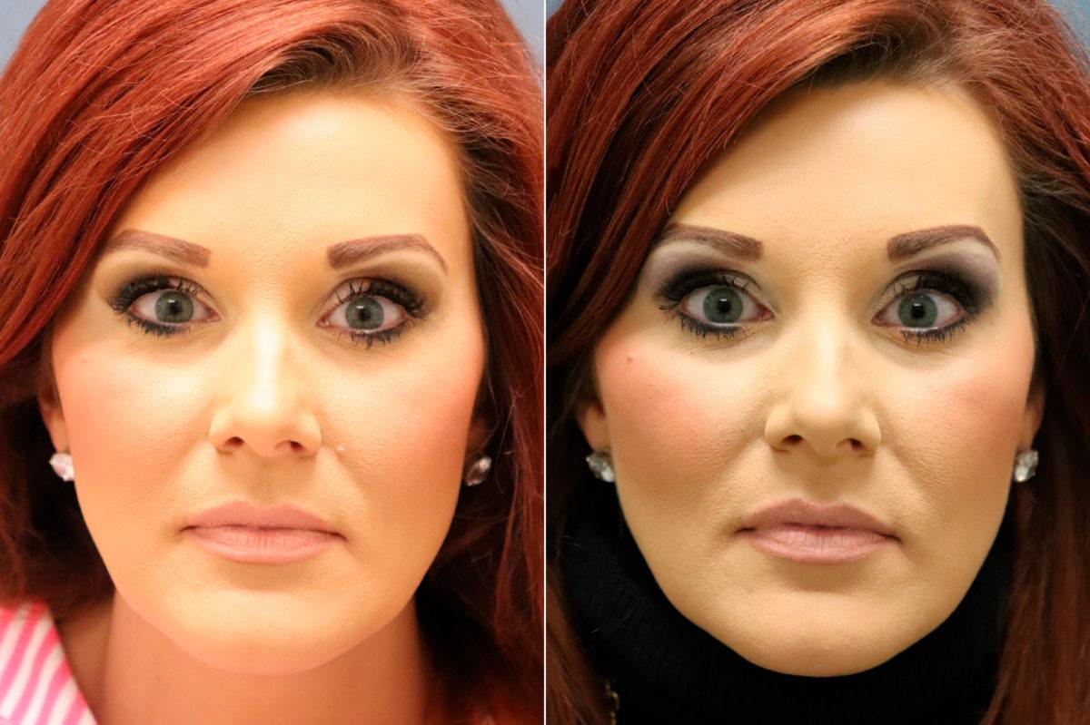 Lesion Removal Before and After Photos in Lexington, KY, Patient 13136