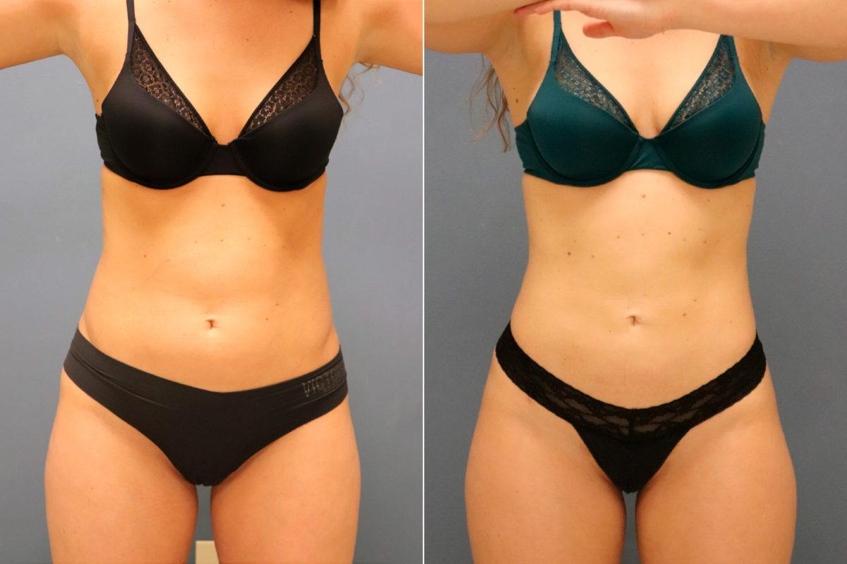 Liposuction Before and After Photos in Lexington, KY, Patient 13053