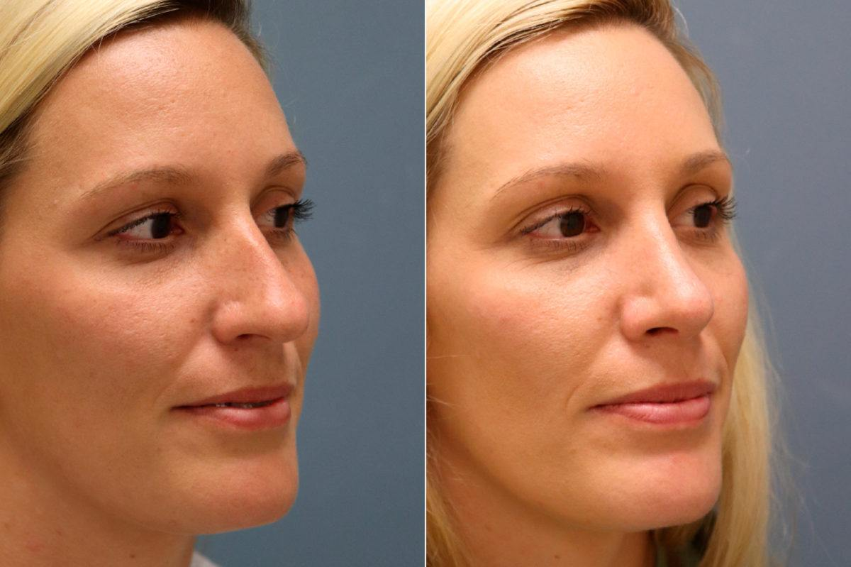 Nose Reshaping (Rhinoplasty) Before and After Photos in , , Patient 13086