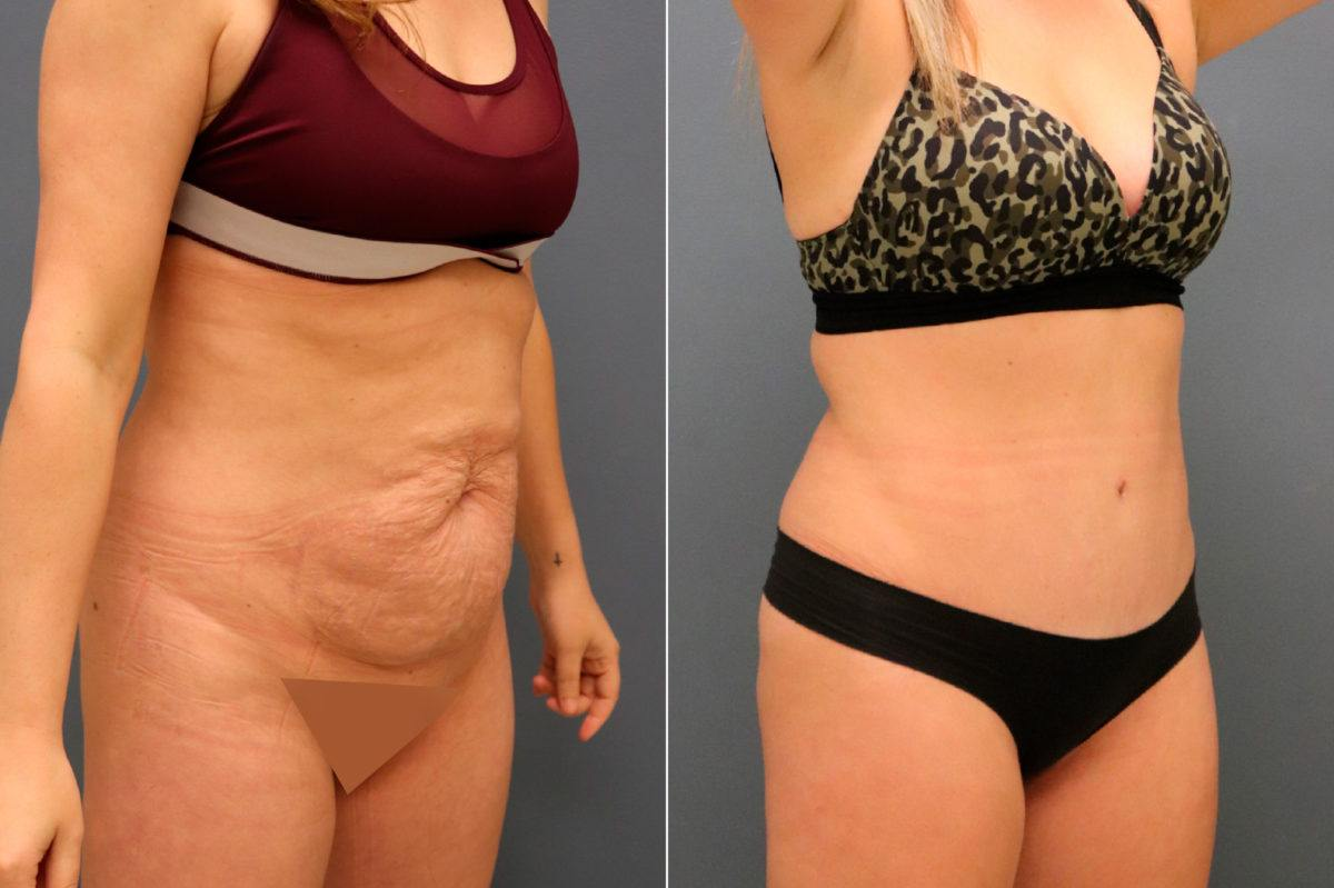 Tummy Tuck Before and After Photos in Lexington, KY, Patient 13064