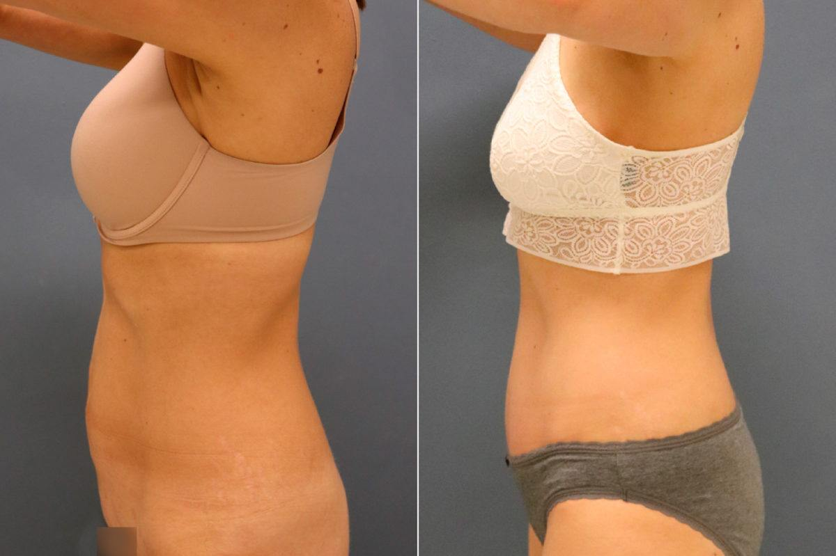 Tummy Tuck Before and After Photos in Lexington, KY, Patient 13143