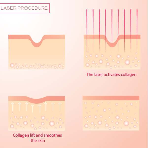 Fractional CO2 Laser Treatments in Lexington