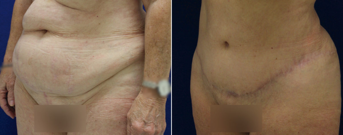 Tummy Tuck Before and After Photos in Lexington, KY, Patient 10295