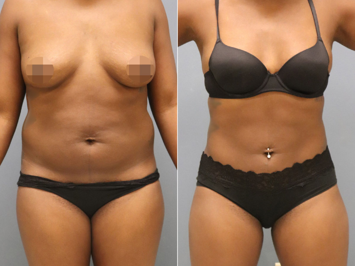Liposuction Before and After Photos in Lexington, KY, Patient 12478