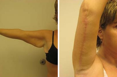 Arm Lift Before and After Photos in Lexington, KY, Patient 7290