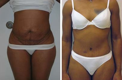 Tummy Tuck Before and After Photos in Lexington, KY, Patient 7450