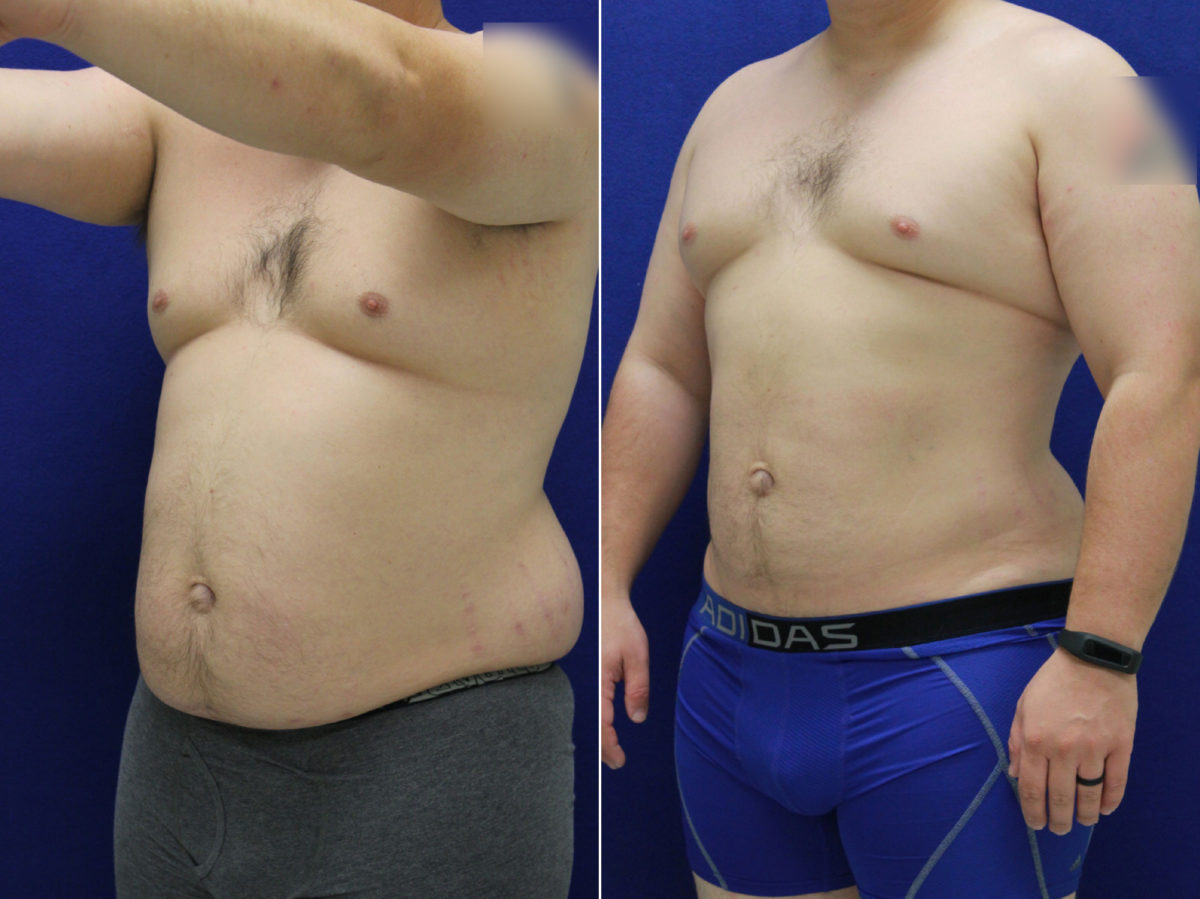 Liposuction Before and After Photos in Lexington, KY, Patient 9011