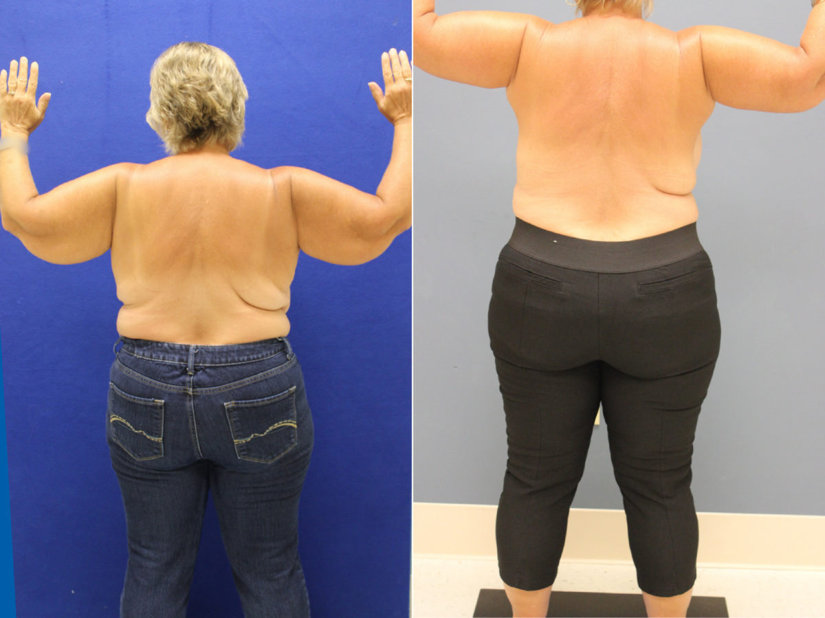 Arm Lift Before and After Photos in Lexington, KY, Patient 9373