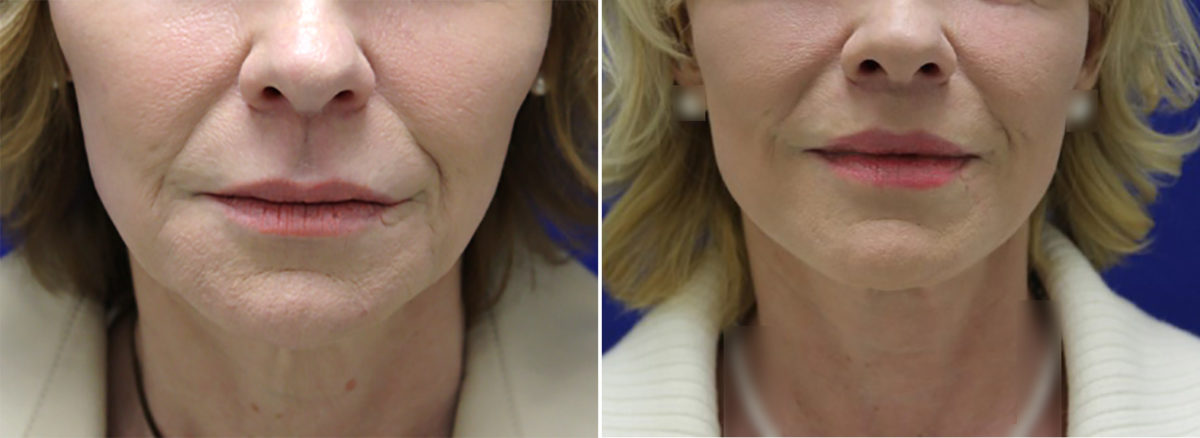 Sub-Nasal Lip lift Before and After Photos in Lexington, KY, Patient 9590