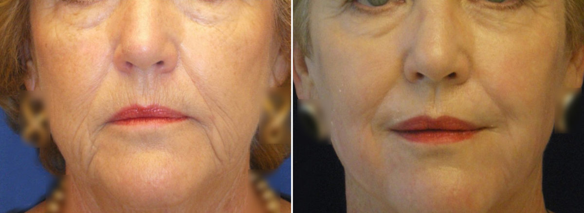 Sub-Nasal Lip lift Before and After Photos in Lexington, KY, Patient 9598
