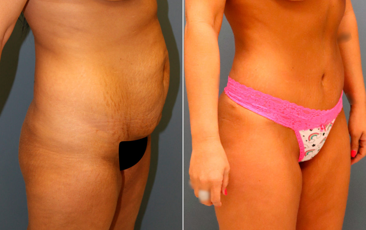 Tummy Tuck Before and After Photos in Lexington, KY, Patient 9956