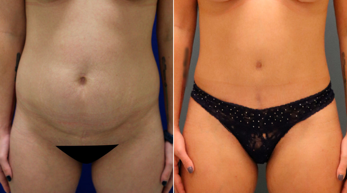 Tummy Tuck Before and After Photos in Lexington, KY, Patient 9965