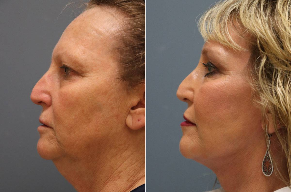 Facelift Before and After Photos in Lexington, KY, Patient 14122