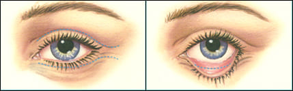 In upper eyelid surgery, Dr. Waldman first marks the individual lines and crease of the lids in order to keep the incisions as invisible as possible along the natural folds.