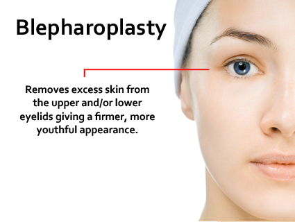 A blepharoplasty will not eradicate the wrinkles around the eyes (crows feet) and these are usually best treated by other means such as laser resurfacing or BOTOX® Cosmetic.