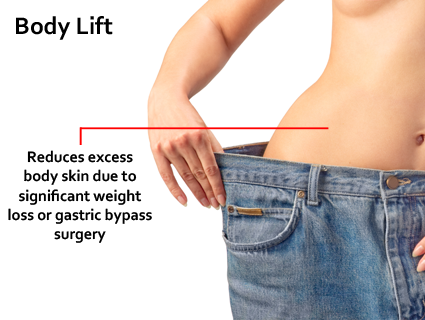 The body lift can be one of the more extensive plastic surgery procedures and probably requires more recovery time.