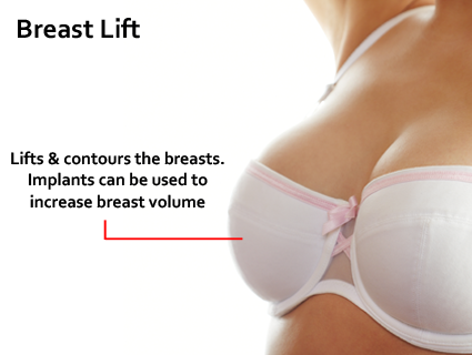 The design of the incisions can vary, but usually include incisions around the nipple-areolar complex and in the crease under the breast. Breast Lift in Lexington, KY