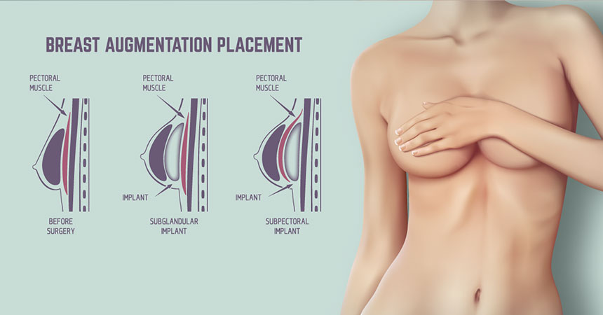 Patients with a full, healthy breast may opt to have its size reduced to produce symmetry in the chest. Breast Reconstruction in Lexington, KY