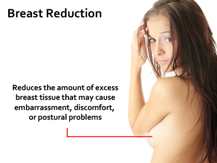 This procedure is commonly covered by insurance though insurance criteria are becoming more and more restrictive. Breast Reduction in Lexington, KY