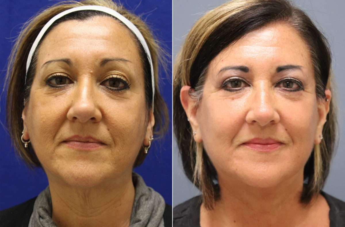 Facelift Before and After Photos in Lexington, KY, Patient 14273
