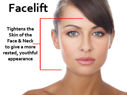 Dr. Waldman believes that facelifts should be individualized accommodating to each patient's personal needs.