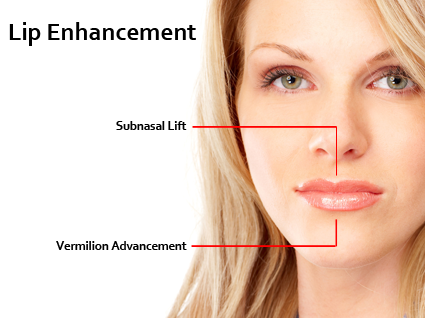 In this procedure, a nearly undetectable incision is made at the base of the nose.   Lip Augmentation in Lexington, KY