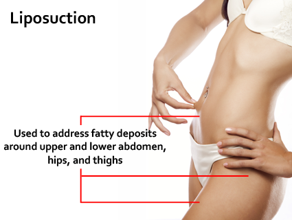 Compression is advised for about six weeks as it helps reduce swelling and helps you achieve the final results more quickly. Liposuction in Lexington, KY