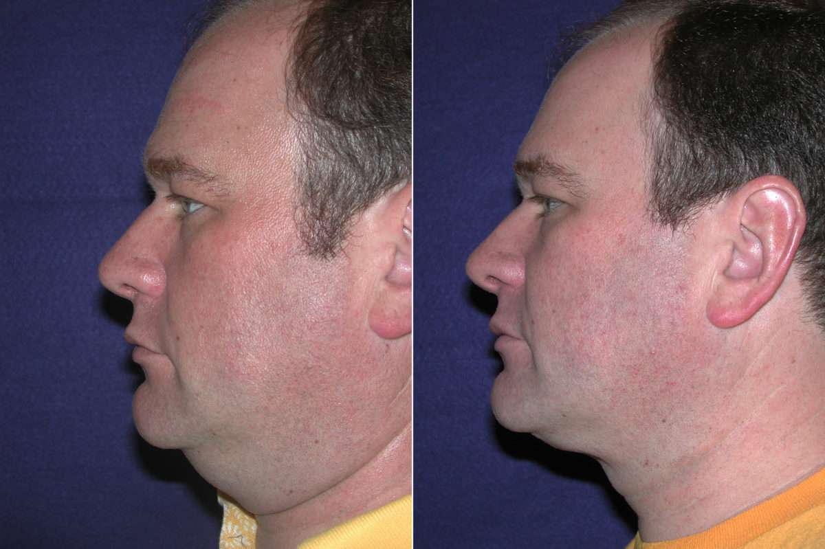 Neck Liposuction Before and After Photos in Lexington, KY, Patient 14374