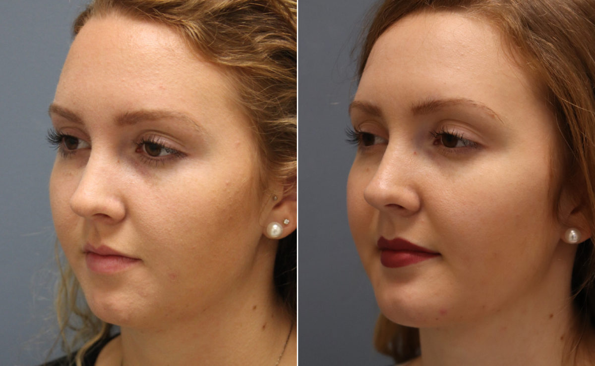 Chin Augmentation Before and After Photos in Lexington, KY, Patient 11010