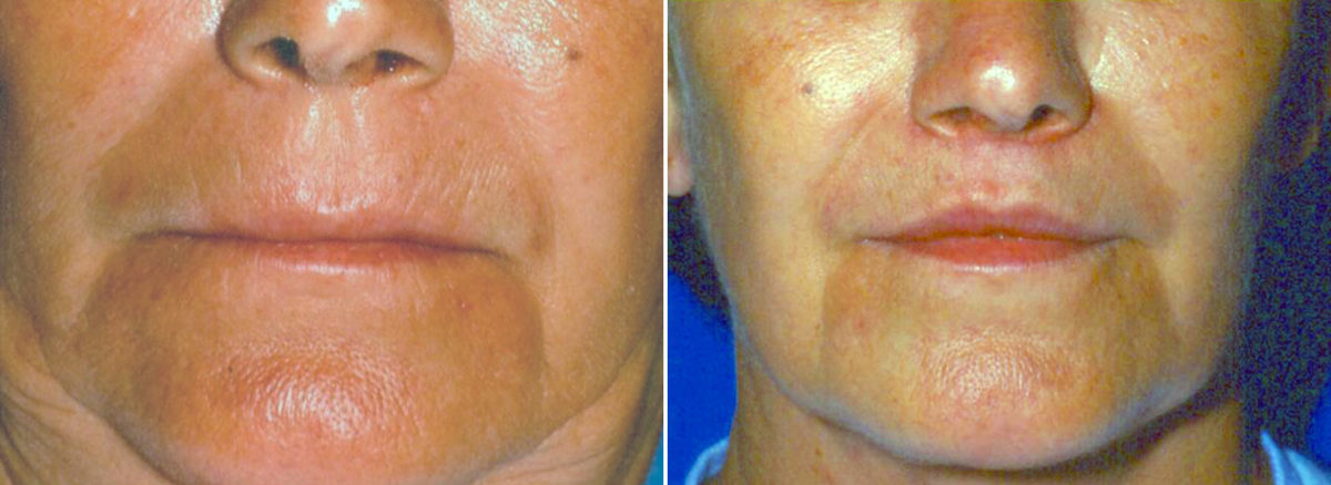 Sub-Nasal Lip lift Before and After Photos in Lexington, KY, Patient 14269