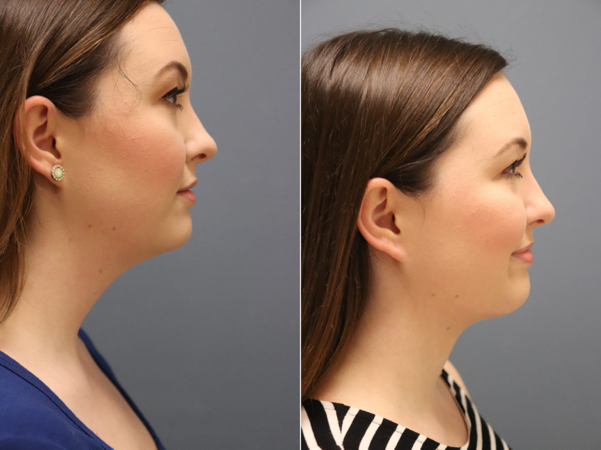 Neck Liposuction Before and After Photos in Lexington, KY, Patient 14505