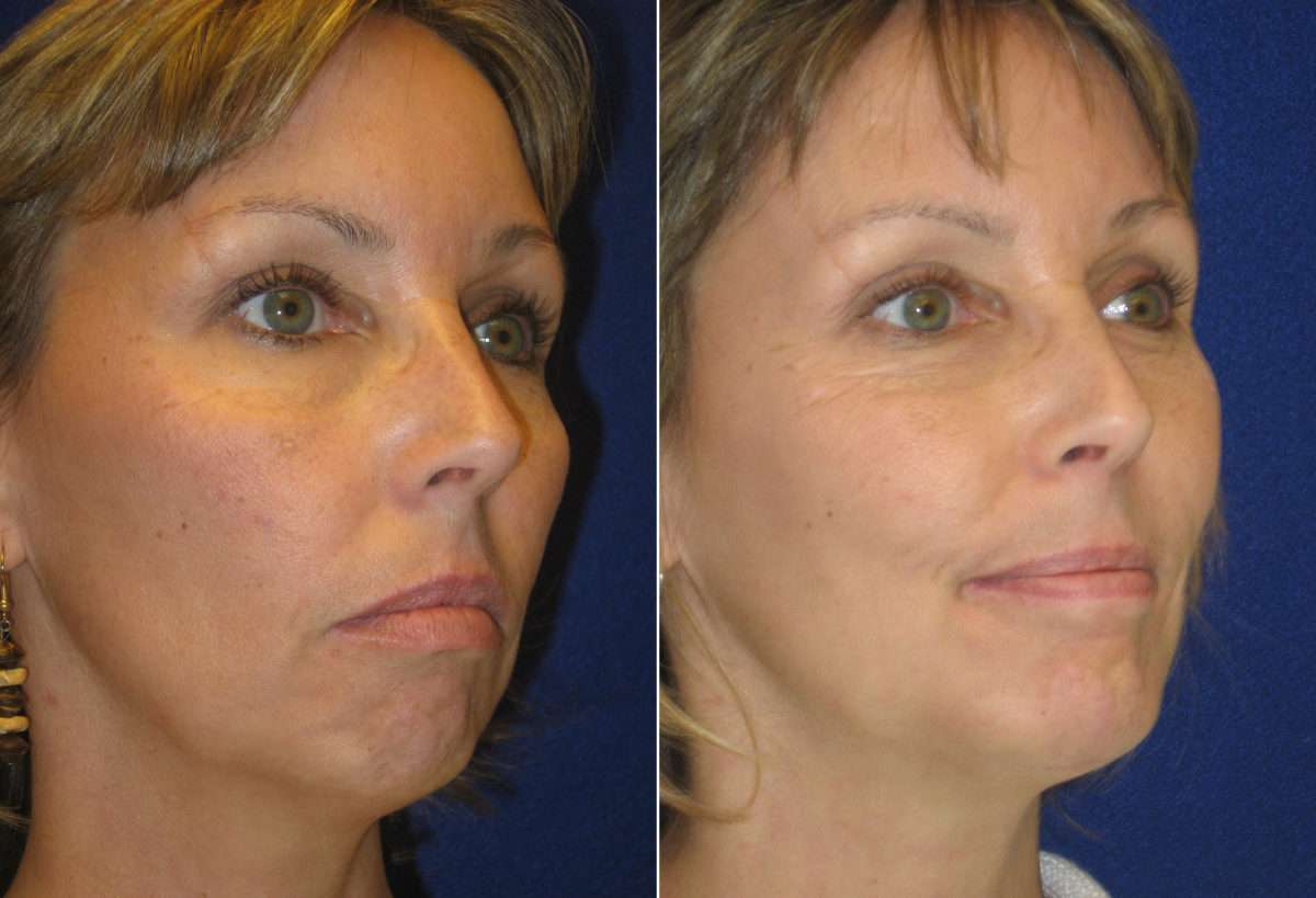 Chin Augmentation Before and After Photos in Lexington, KY, Patient 6670