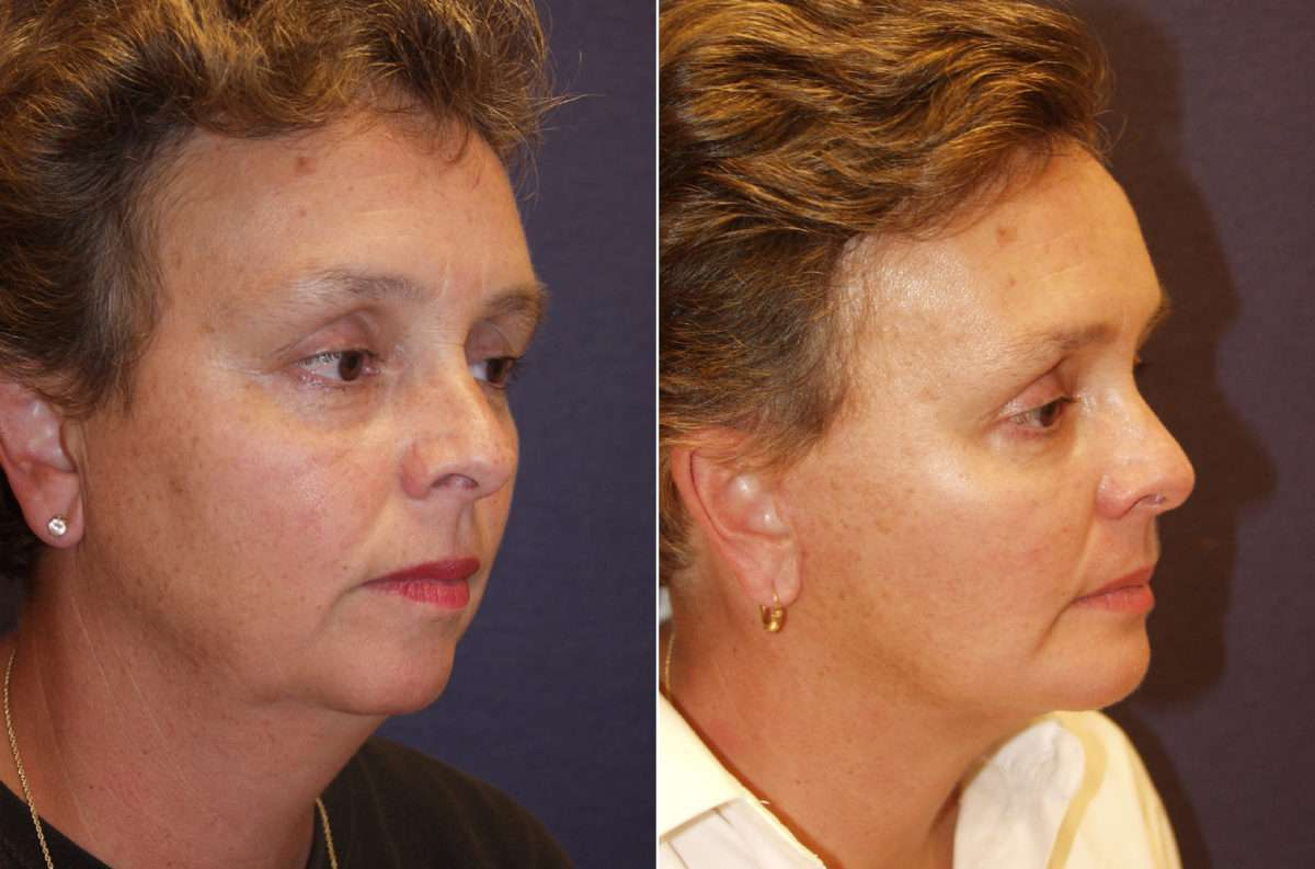 Chin Augmentation Before and After Photos in Lexington, KY, Patient 6680