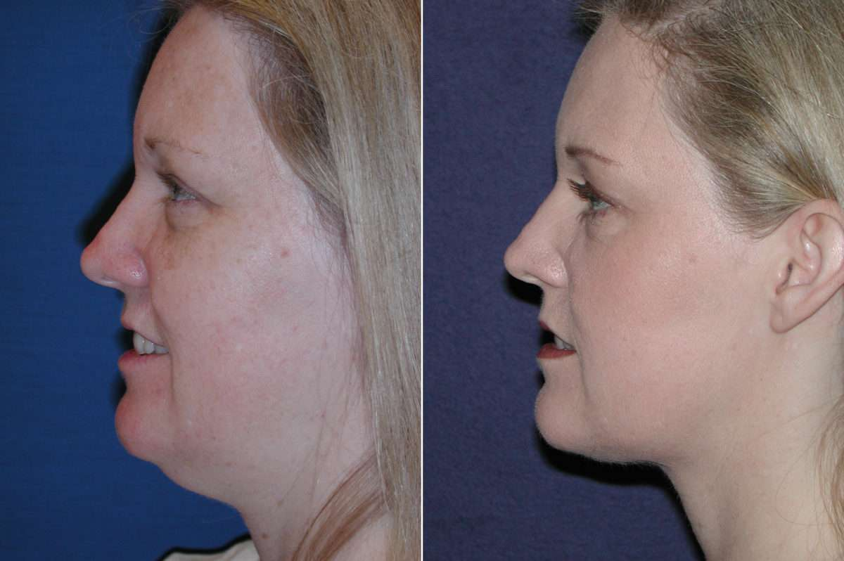 Neck Liposuction Before and After Photos in Lexington, KY, Patient 7249