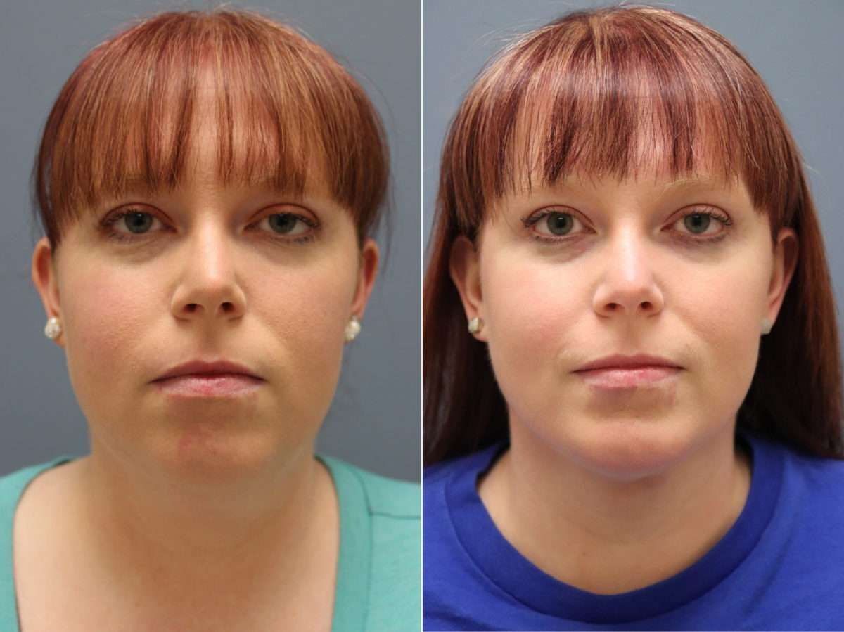 Chin Augmentation Before and After Photos in Lexington, KY, Patient 9817
