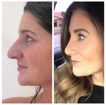 Rhinoplasty is the official name of the operation that improves the appearance and/or function of the nose. Dr. Waldman | Lexington, KY