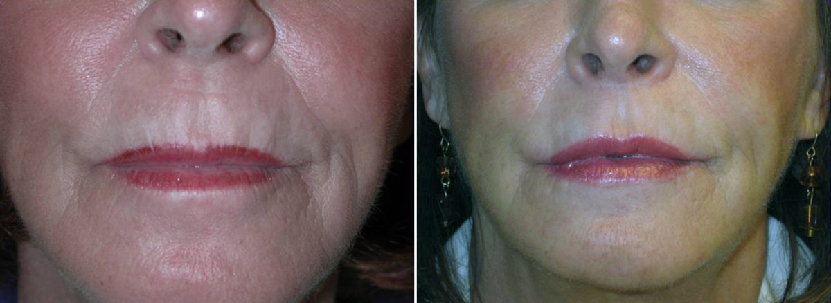 Sub-Nasal Lip lift Before and After Photos in Lexington, KY, Patient 14265